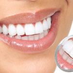 Teeth Whitening Procedures that Will Brighten Your Smile