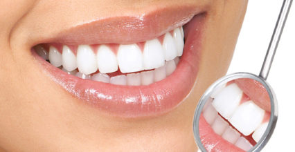 Teeth Whitening Procedures that Will Brighten Your Smile