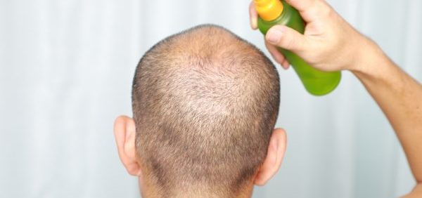 Finding A Good Hair Loss Clinic in Toronto