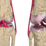 What is Does Osteoporosis Mean?