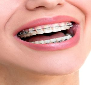 OrthodonticDental Insurance – Get Braces For Kids Painlessly