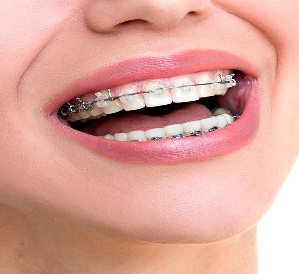 OrthodonticDental Insurance – Get Braces For Kids Painlessly