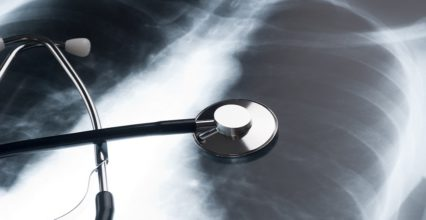 UK Asbestos Related Lung Cancer Compensation Claims