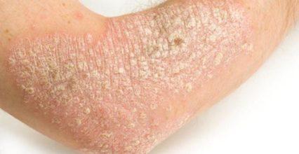CanDiabetesCause Dry Skin