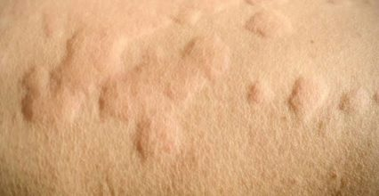 What are skin allergies and how to prevent them?