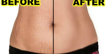 3 Things You Should Know About Stretch Mark Removal