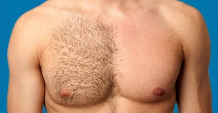 3 Things You Need To Know About Chest Hair Removal