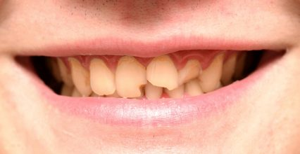 4 Options To Restore Your Broken Tooth
