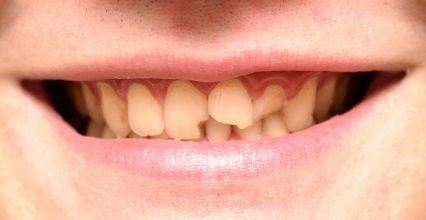 4 Options To Restore Your Broken Tooth