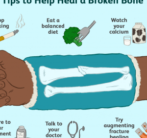 How To Recover From a Broken Bone