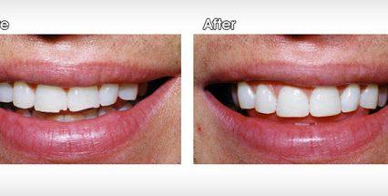 4 Advantages of Dental Bonding