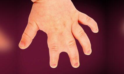 4 Congenital Hand Deformities