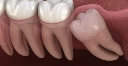 4 Tips To Prepare for Your Wisdom Teeth Removal Procedure