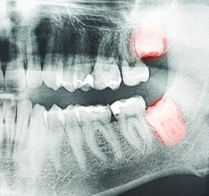 What To Expect When You Get Your Wisdom Teeth Removed
