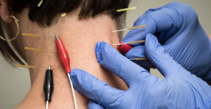 Facts Everyone Should Know About Dry Needling
